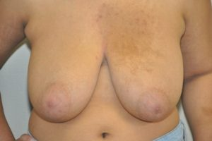 Patient 9 - Breast Reduction Before