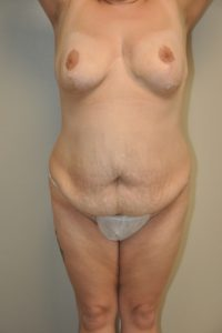 Patient 9 - Tummy Tuck Before