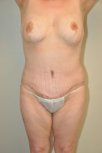 Patient 9 - Tummy Tuck After